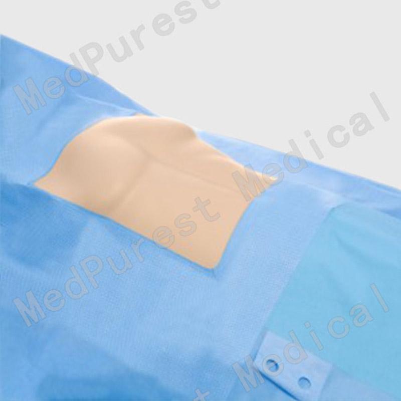 通用外科胸部手术洞巾